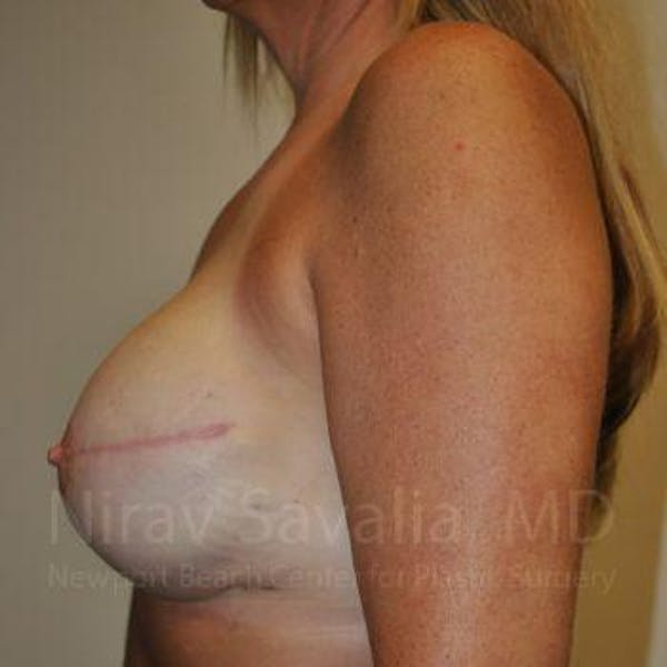 Mastectomy Reconstruction Gallery - Patient 1655464 - Image 8