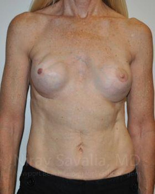 Mastectomy Reconstruction Revision Gallery - Patient 1655466 - Image 1