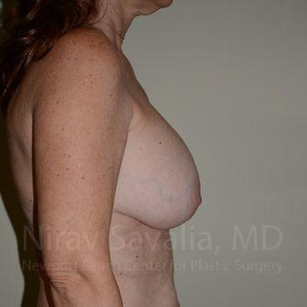 Breast Lift with Implants Gallery - Patient 1655467 - Image 3