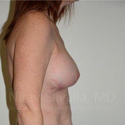 Breast Lift with Implants Gallery - Patient 1655467 - Image 4