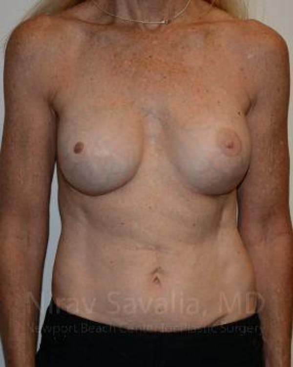 Mastectomy Reconstruction Revision Gallery - Patient 1655466 - Image 2