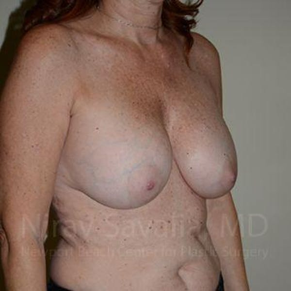 Breast Lift with Implants Gallery - Patient 1655467 - Image 5