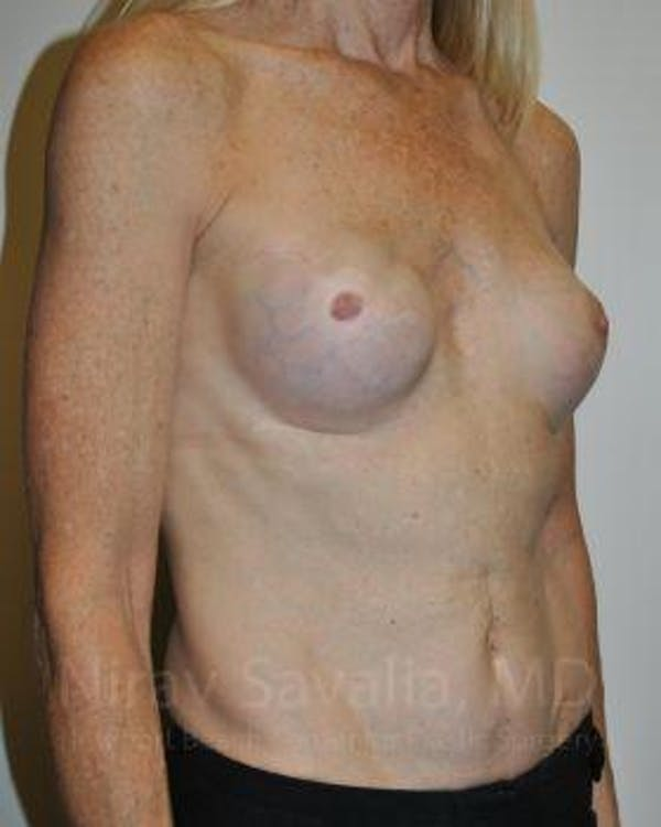 Mastectomy Reconstruction Revision Gallery - Patient 1655466 - Image 3