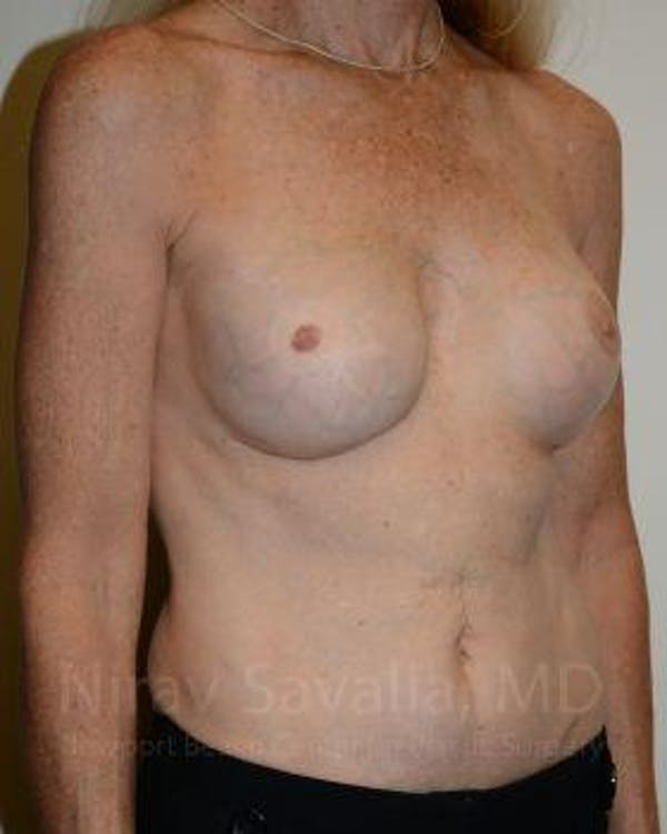 Mastectomy Reconstruction Revision Gallery - Patient 1655466 - Image 4