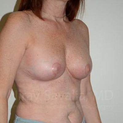 Breast Lift with Implants Gallery - Patient 1655467 - Image 6