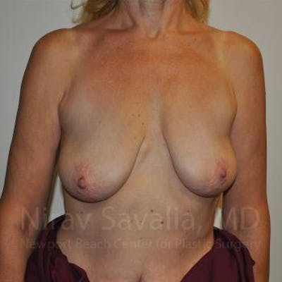 Breast Lift without Implants Gallery - Patient 1655472 - Image 1