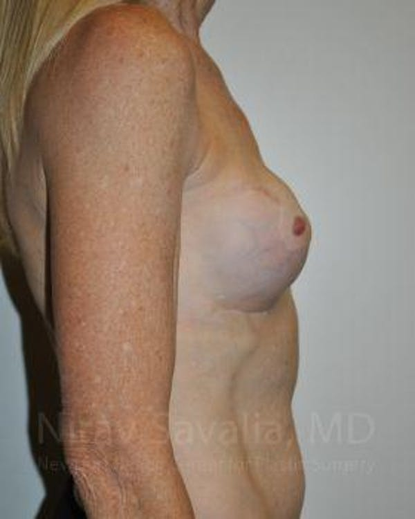Mastectomy Reconstruction Revision Gallery - Patient 1655466 - Image 5