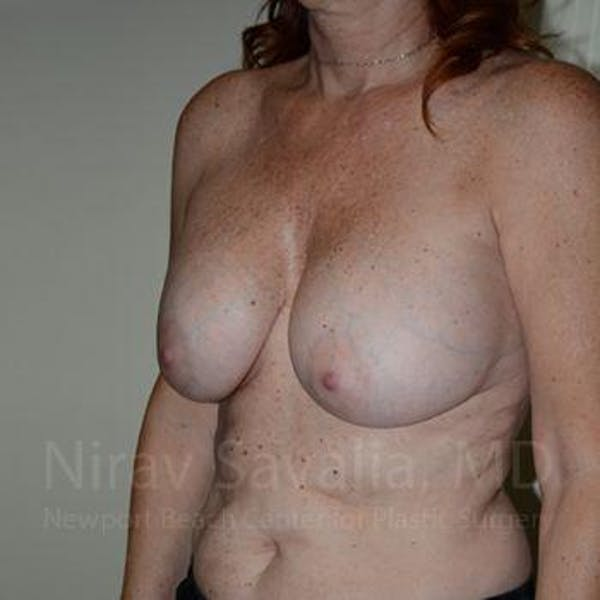 Breast Lift with Implants Gallery - Patient 1655467 - Image 7