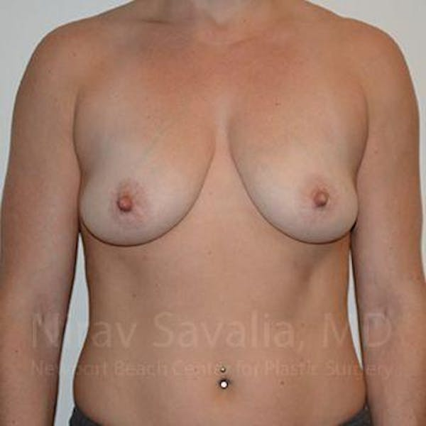 Breast Augmentation Gallery - Patient 1655469 - Image 1