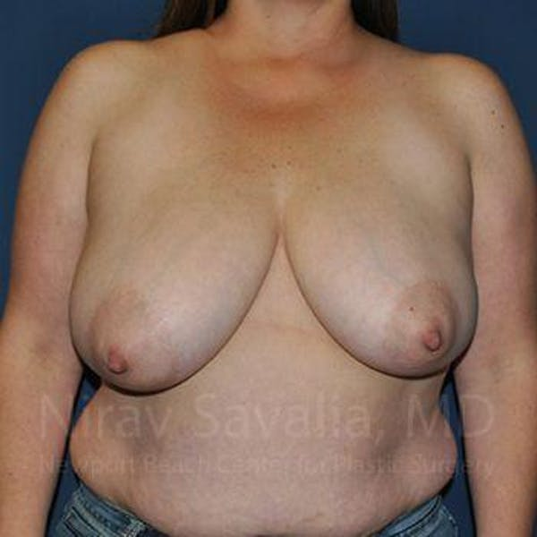 Breast Reduction Gallery - Patient 1655476 - Image 1