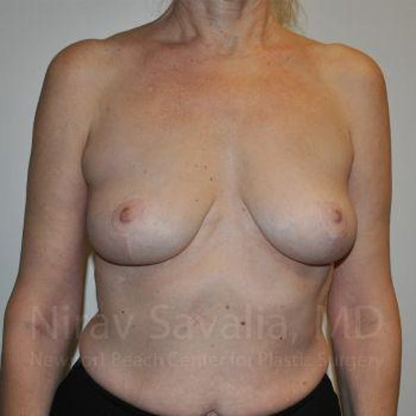 Breast Lift without Implants Gallery - Patient 1655472 - Image 2