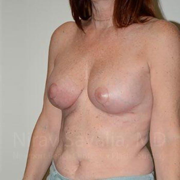 Breast Lift with Implants Gallery - Patient 1655467 - Image 8