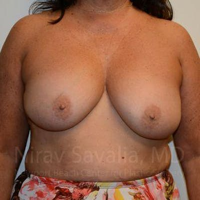 Breast Explantation / En Bloc Capsulectomy Gallery - Patient 1655471 - Image 1