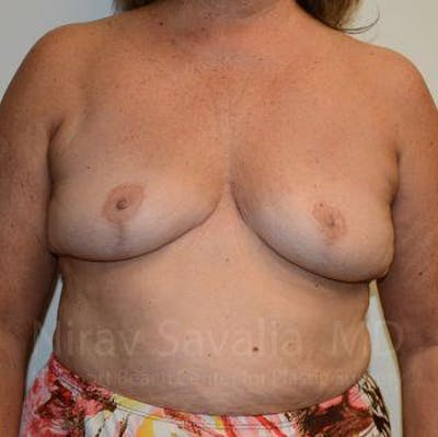 Breast Explantation / En Bloc Capsulectomy Gallery - Patient 1655471 - Image 2