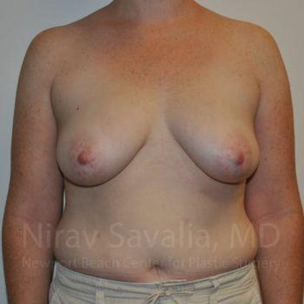 Mastectomy Reconstruction Gallery - Patient 1655468 - Image 1