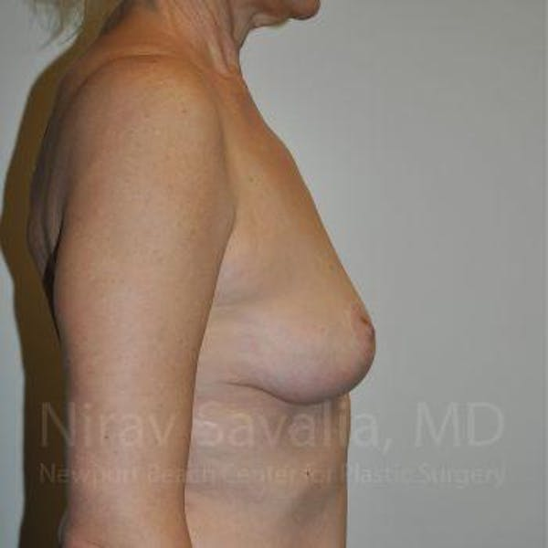 Breast Lift without Implants Gallery - Patient 1655472 - Image 4
