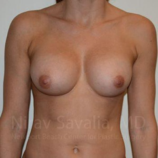 Breast Implant Revision Gallery - Patient 1655470 - Image 2