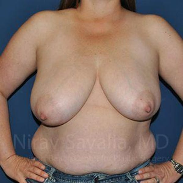 Breast Reduction Gallery - Patient 1655476 - Image 3
