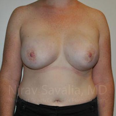 Mastectomy Reconstruction Gallery - Patient 1655468 - Image 2