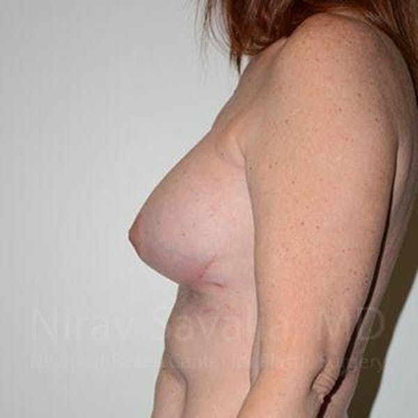 Breast Lift with Implants Gallery - Patient 1655467 - Image 10