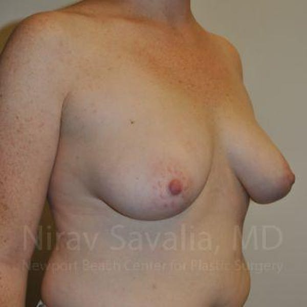Mastectomy Reconstruction Gallery - Patient 1655468 - Image 3