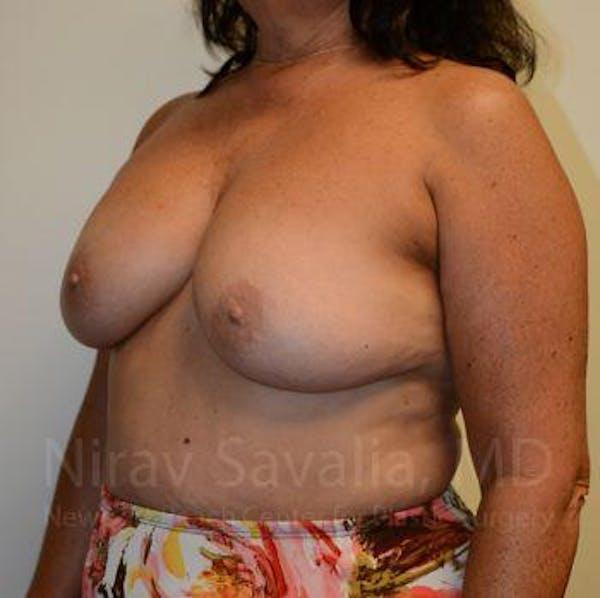 Breast Explantation / En Bloc Capsulectomy Gallery - Patient 1655471 - Image 5