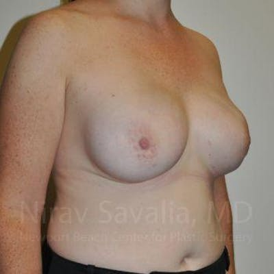 Mastectomy Reconstruction Gallery - Patient 1655468 - Image 4
