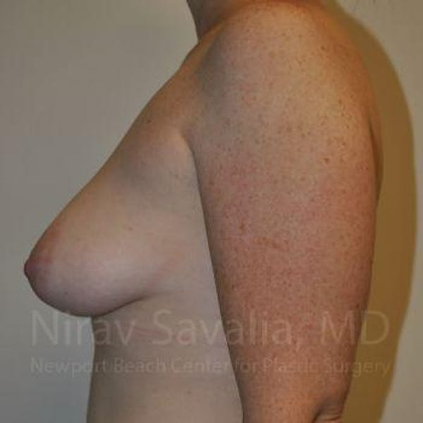Mastectomy Reconstruction Gallery - Patient 1655468 - Image 5