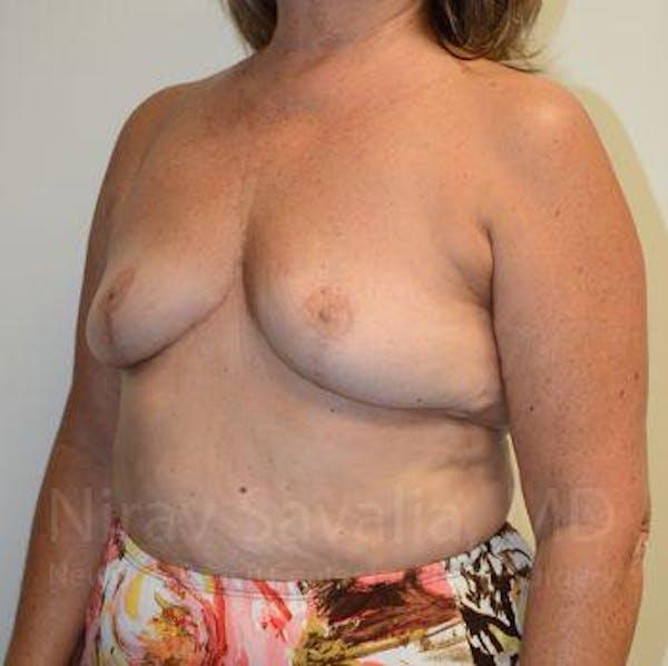 Breast Explantation / En Bloc Capsulectomy Gallery - Patient 1655471 - Image 6