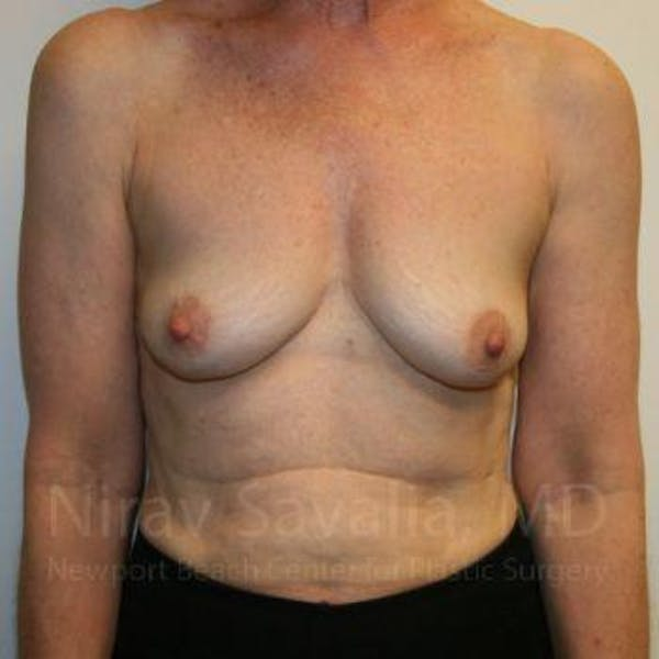 Oncoplastic Reconstruction Gallery - Patient 1655475 - Image 1