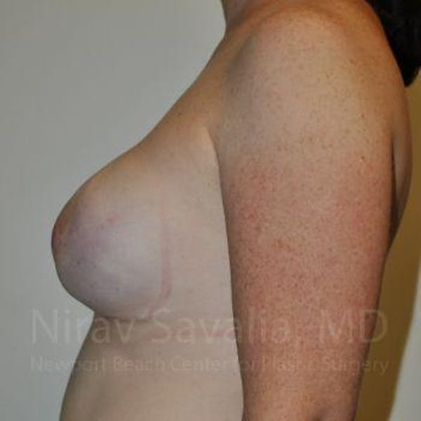 Mastectomy Reconstruction Gallery - Patient 1655468 - Image 6