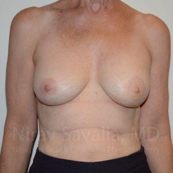 Oncoplastic Reconstruction Gallery - Patient 1655475 - Image 2