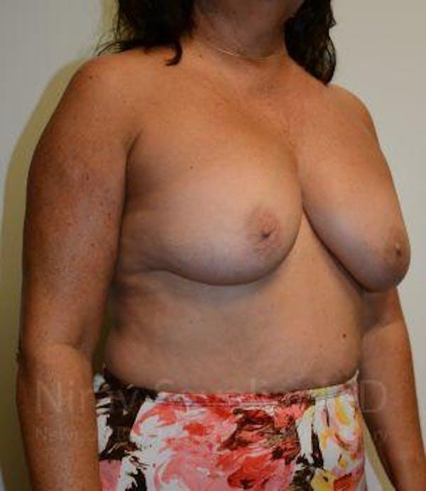 Breast Explantation / En Bloc Capsulectomy Gallery - Patient 1655471 - Image 7