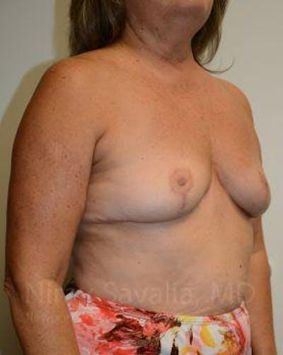 Breast Explantation / En Bloc Capsulectomy Gallery - Patient 1655471 - Image 8