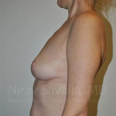 Breast Lift without Implants Gallery - Patient 1655472 - Image 6