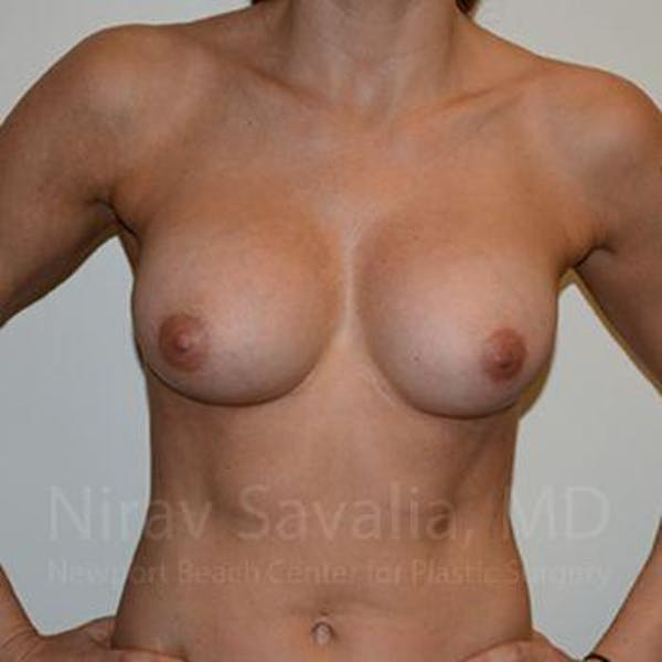 Breast Implant Revision Gallery - Patient 1655470 - Image 4