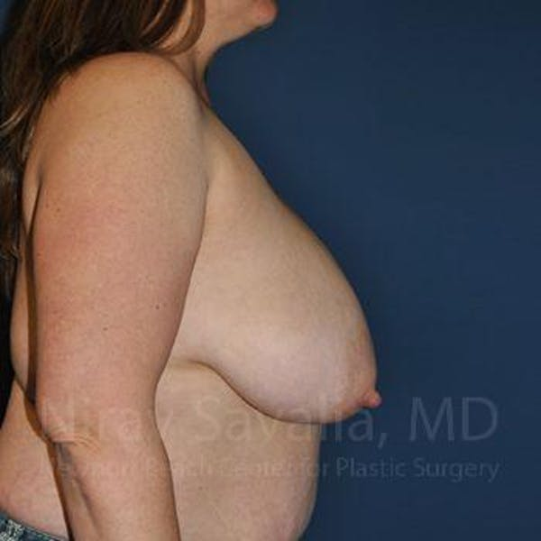 Breast Reduction Gallery - Patient 1655476 - Image 5