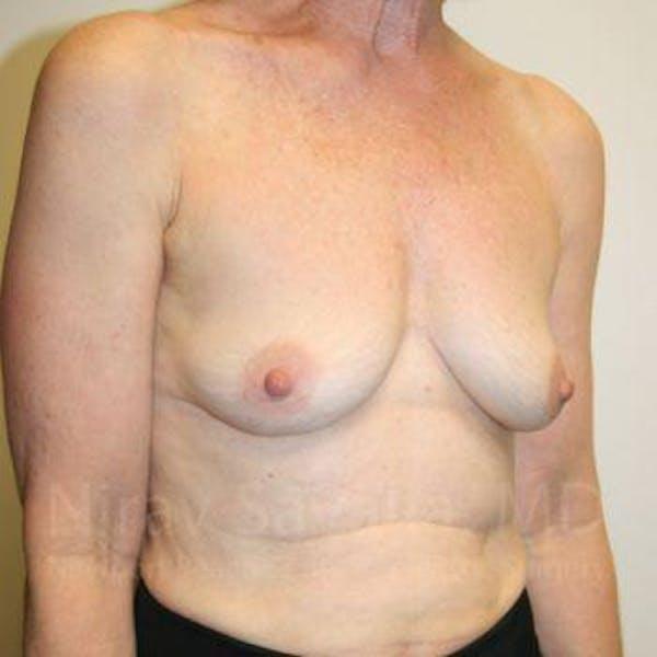 Oncoplastic Reconstruction Gallery - Patient 1655475 - Image 3