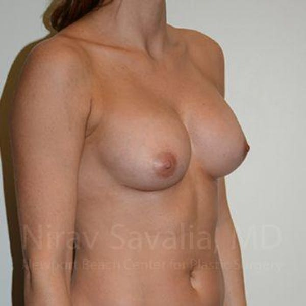Breast Implant Revision Gallery - Patient 1655470 - Image 8