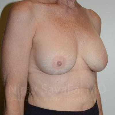 Oncoplastic Reconstruction Gallery - Patient 1655475 - Image 4