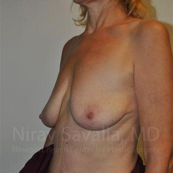 Breast Lift without Implants Gallery - Patient 1655472 - Image 7