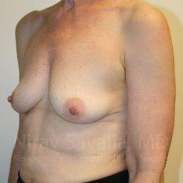 Oncoplastic Reconstruction Gallery - Patient 1655475 - Image 5