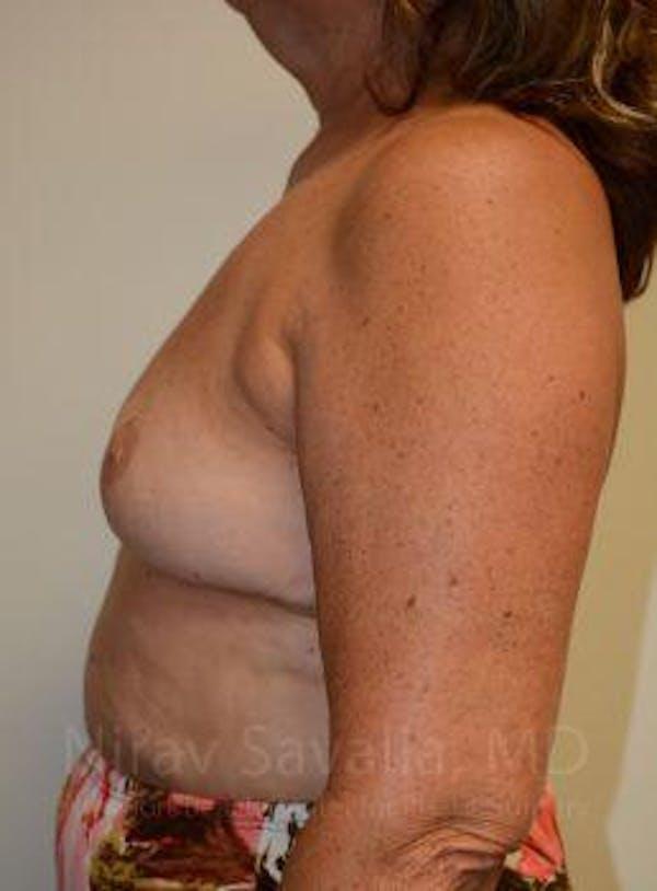 Breast Explantation / En Bloc Capsulectomy Gallery - Patient 1655471 - Image 10