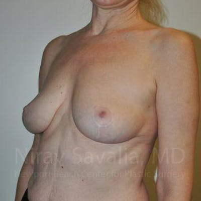Breast Lift without Implants Gallery - Patient 1655472 - Image 8
