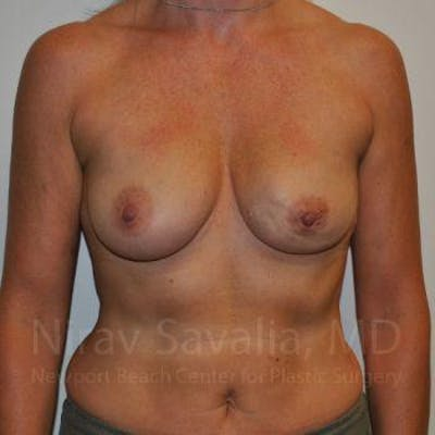 Mastectomy Reconstruction Gallery - Patient 1655474 - Image 1