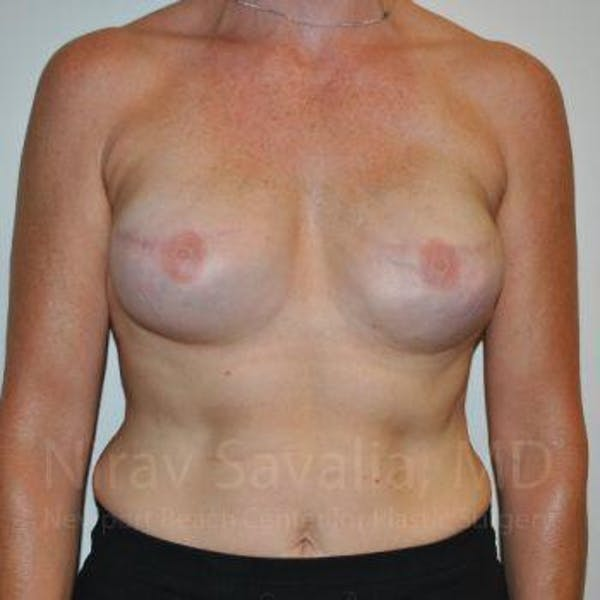 Mastectomy Reconstruction Gallery - Patient 1655474 - Image 2