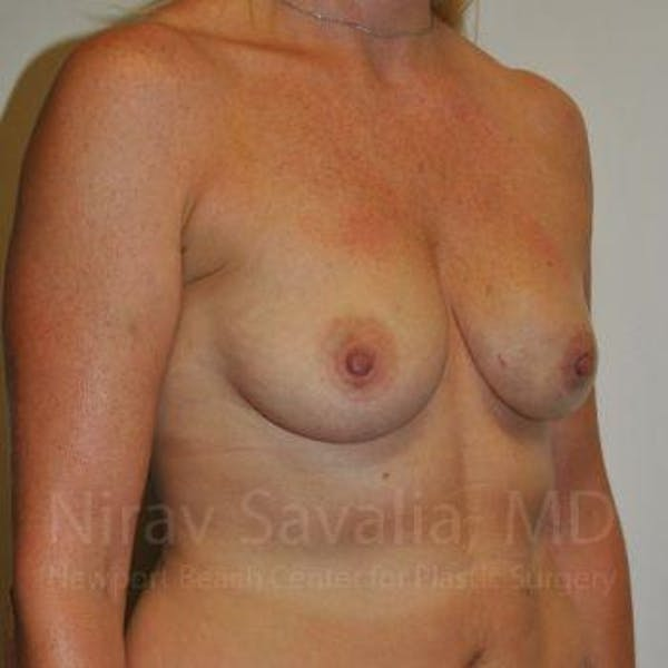 Mastectomy Reconstruction Gallery - Patient 1655474 - Image 3