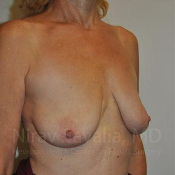 Breast Lift without Implants Gallery - Patient 1655472 - Image 9