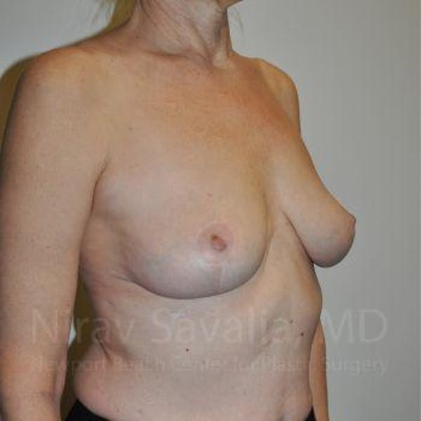 Breast Lift without Implants Gallery - Patient 1655472 - Image 10