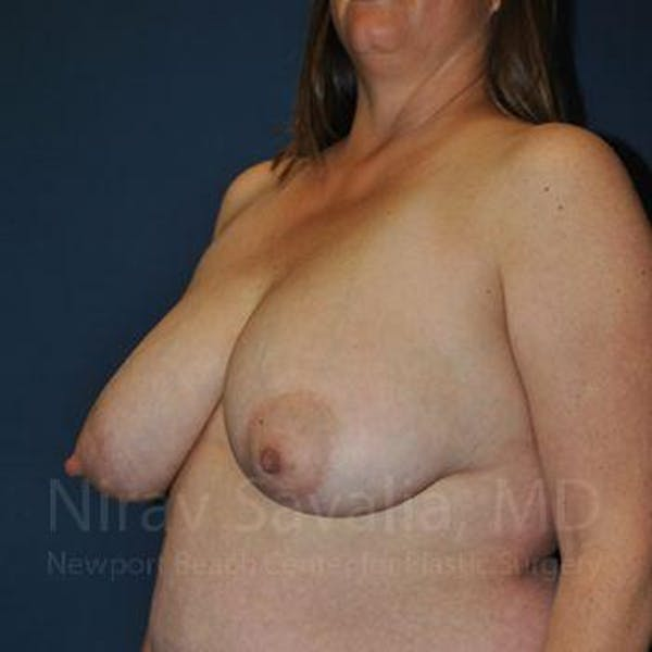Breast Reduction Gallery - Patient 1655476 - Image 9
